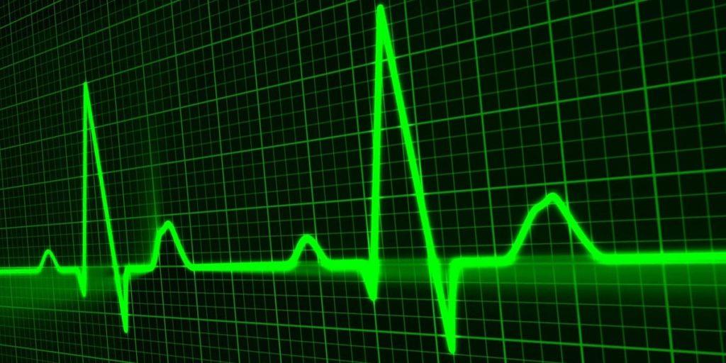 Cardiochirurgia